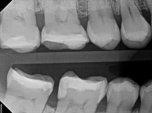 xray of teeth after fillings